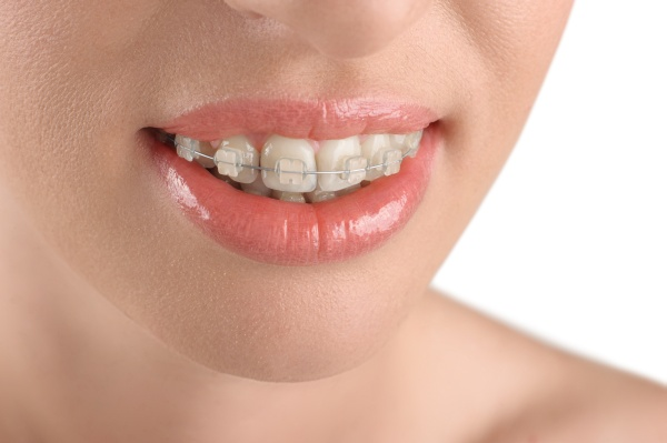 What Are Lingual Braces And How Do They Work?