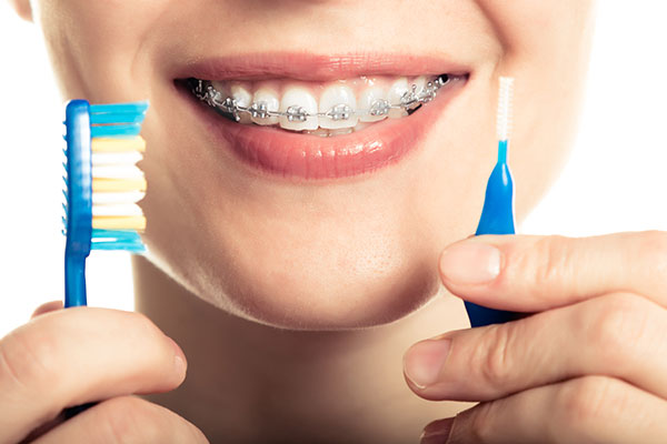 The Pros And Cons Of Ceramic Braces