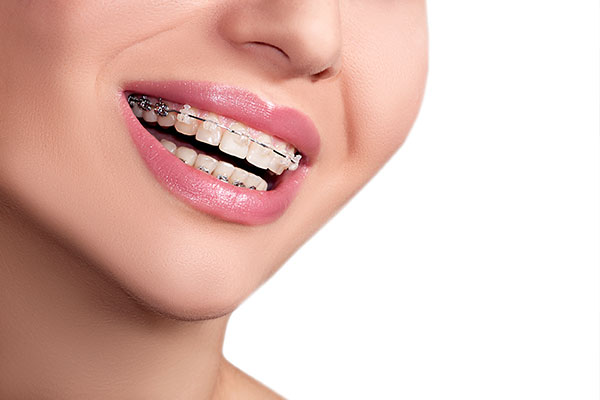 What Takes Longer: Clear Aligners Or Braces?