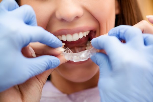 orthodontic Laguna Hills, CA
